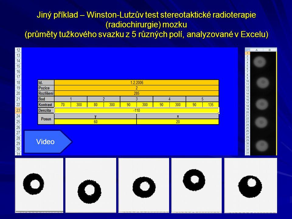 Jiný příklad – Winston-Lutzův test stereotaktické radioterapie (radiochirurgie) mozku (průměty tužkového svazku z 5 různých polí, analyzované v Excelu)