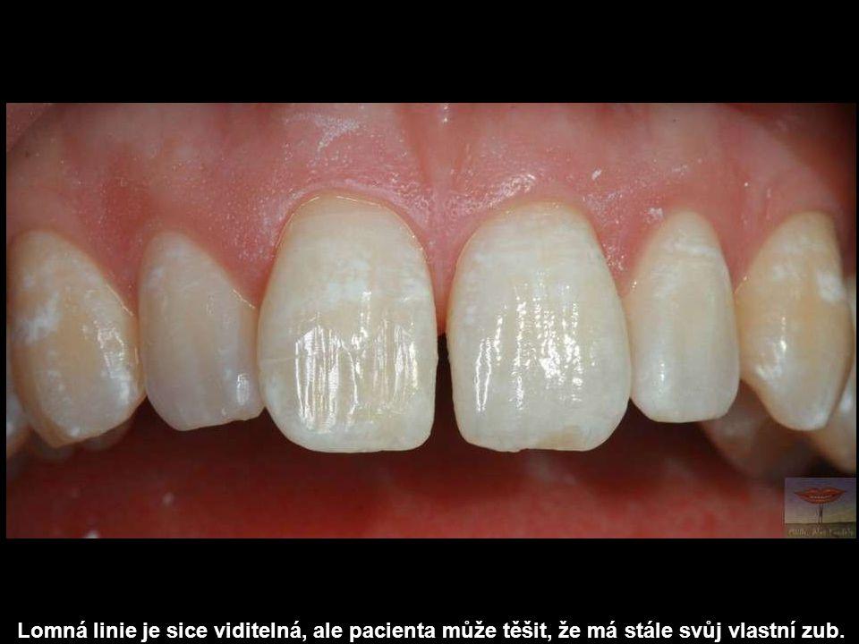 Lomná linie je sice viditelná, ale pacienta může těšit, že má stále svůj vlastní zub.