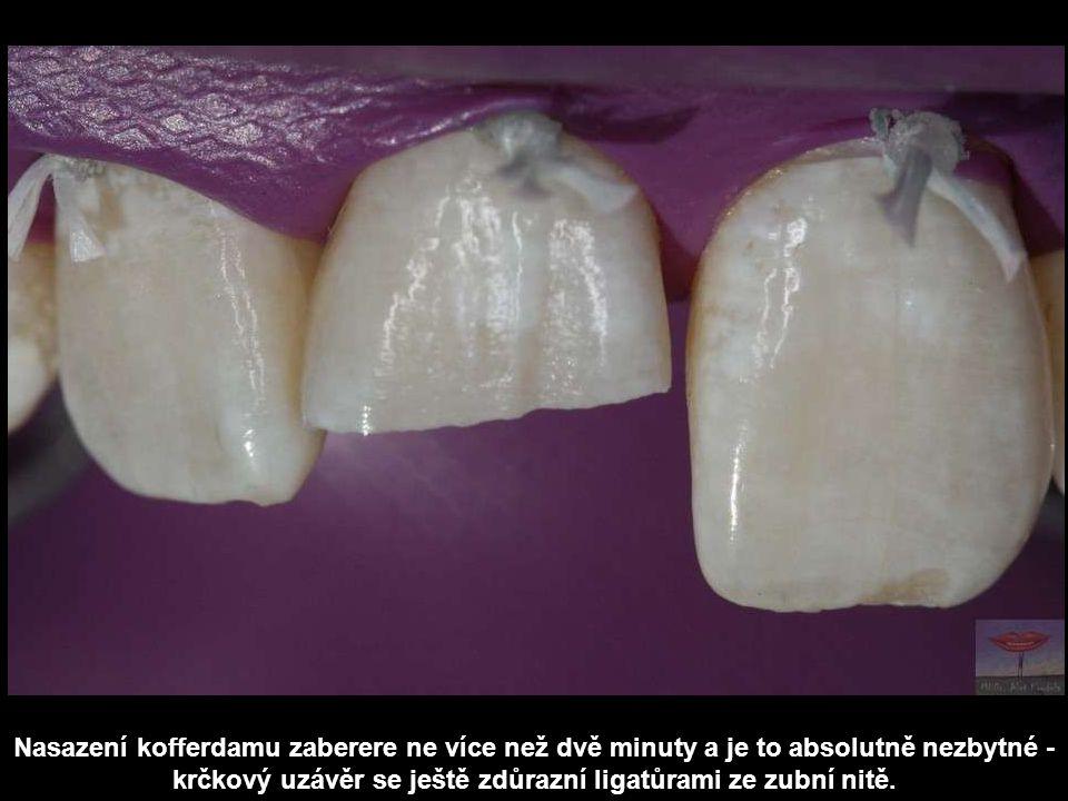 Nasazení kofferdamu zaberere ne více než dvě minuty a je to absolutně nezbytné - krčkový uzávěr se ještě zdůrazní ligatůrami ze zubní nitě.
