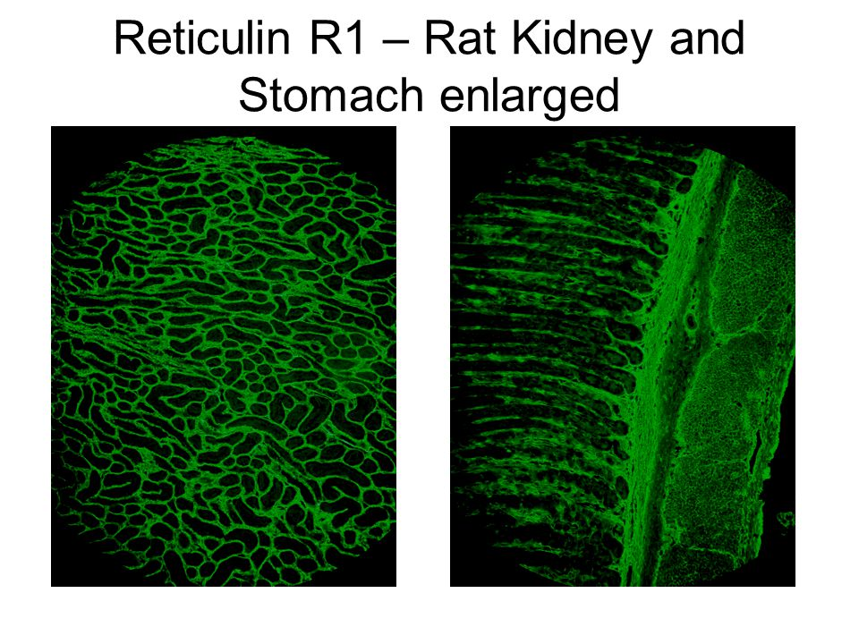 Reticulin R1 – Rat Kidney and Stomach enlarged