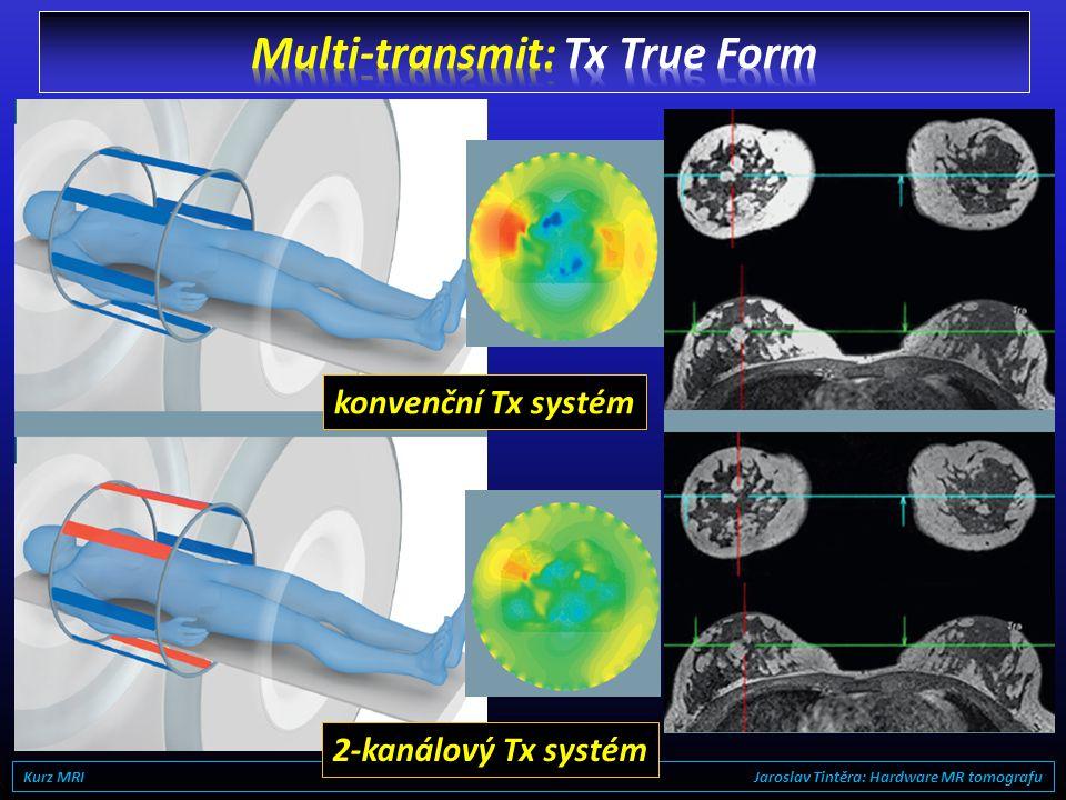 Multi-transmit: Tx True Form