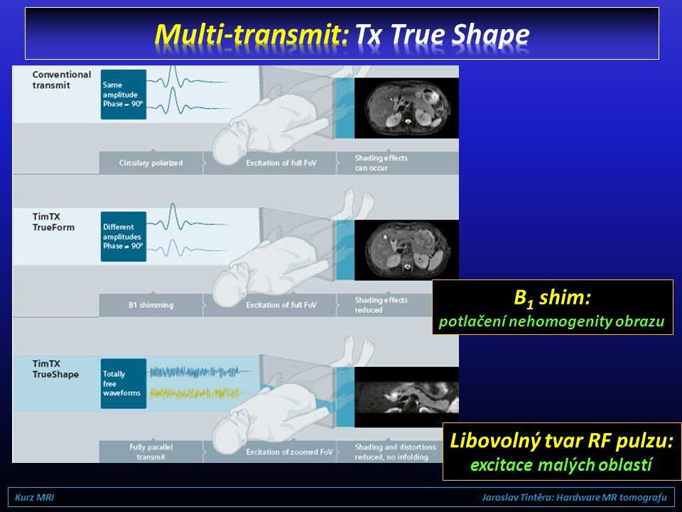 Multi-transmit: Tx True Shape