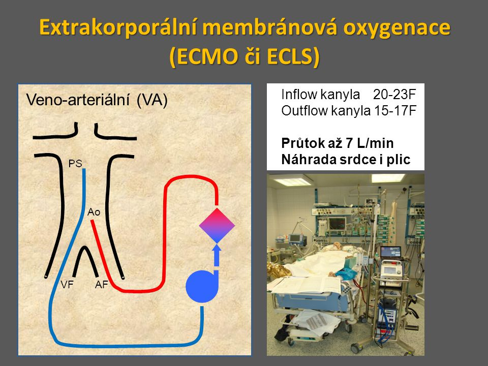 Extrakorporální membránová oxygenace (ECMO či ECLS)