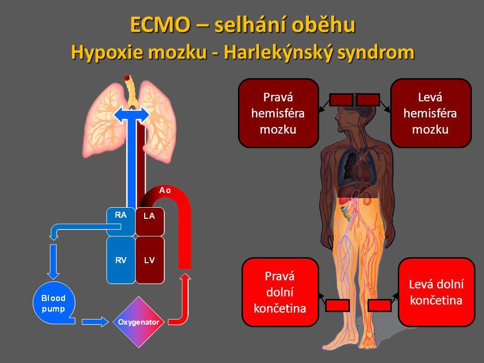 Hypoxie mozku - Harlekýnský syndrom