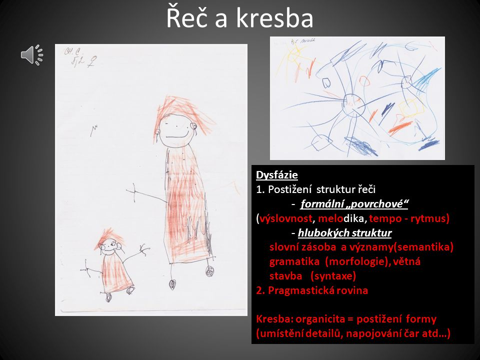 Řeč a kresba Dysfázie 1. Postižení struktur řeči