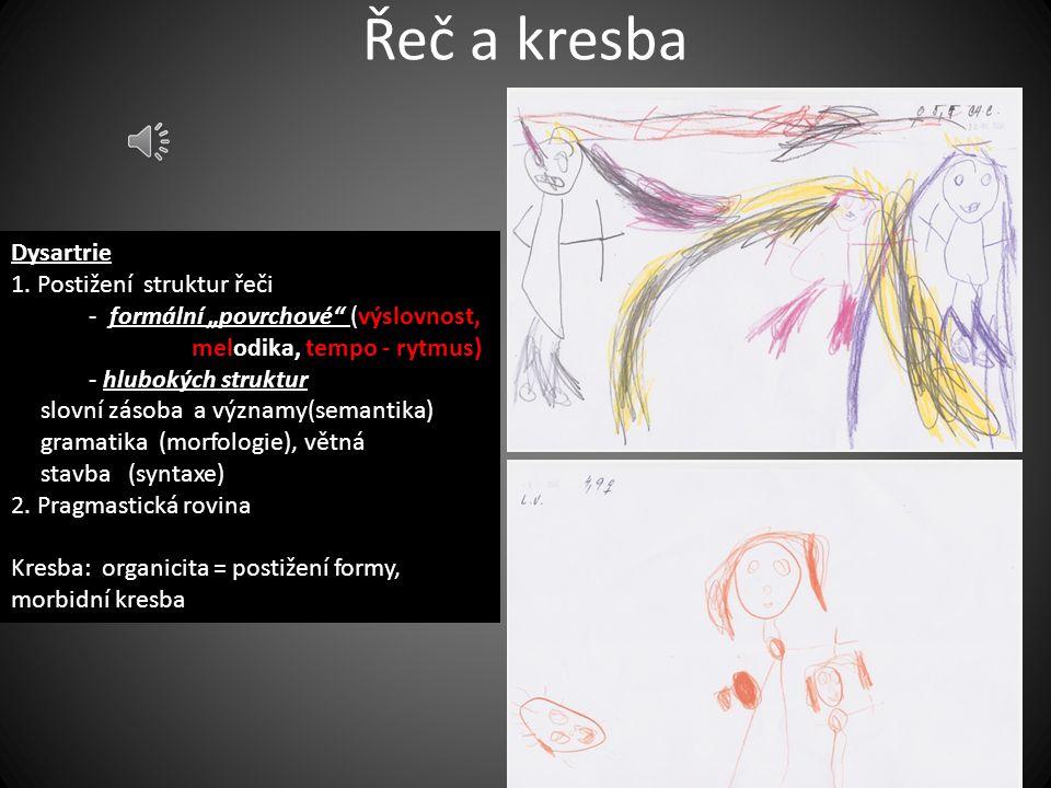 Řeč a kresba Dysartrie 1. Postižení struktur řeči
