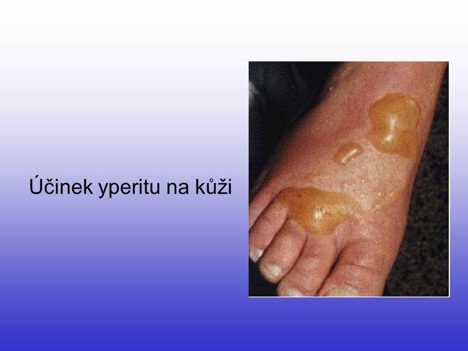 Účinek yperitu na kůži