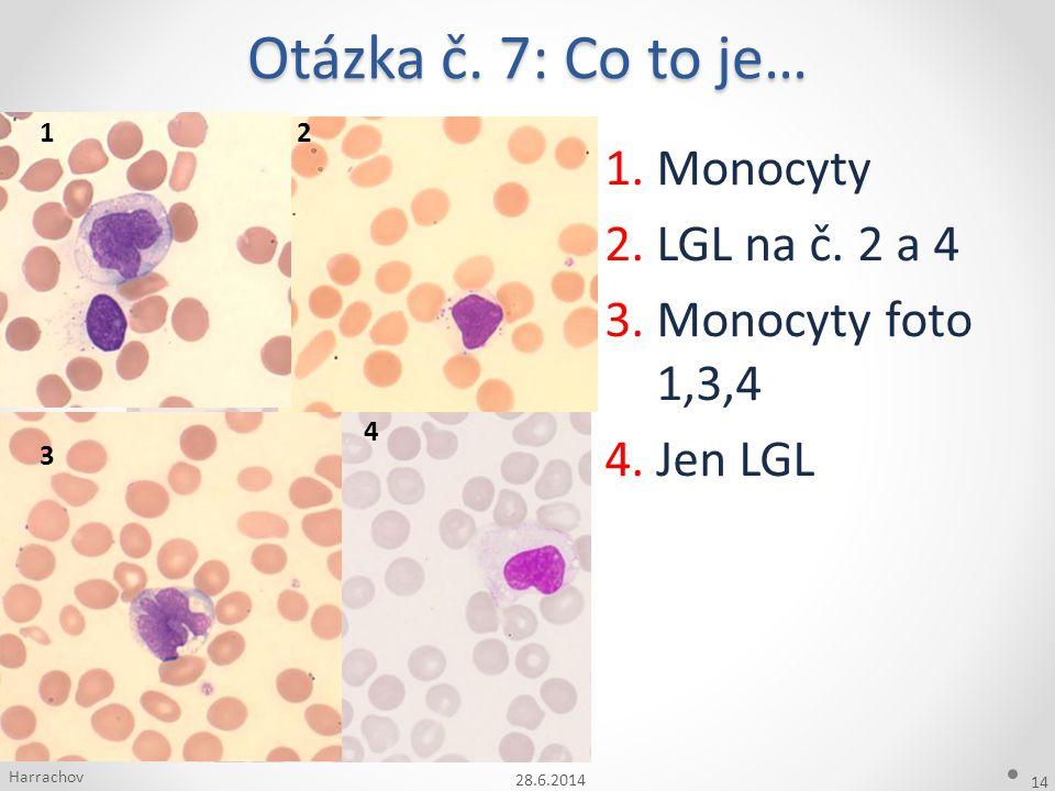 Otázka č. 7: Co to je… Monocyty LGL na č. 2 a 4 Monocyty foto 1,3,4