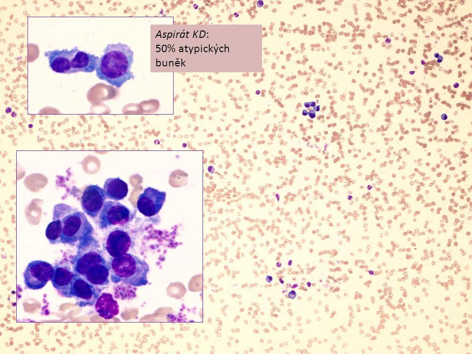 Aspirát KD: 50% atypických buněk