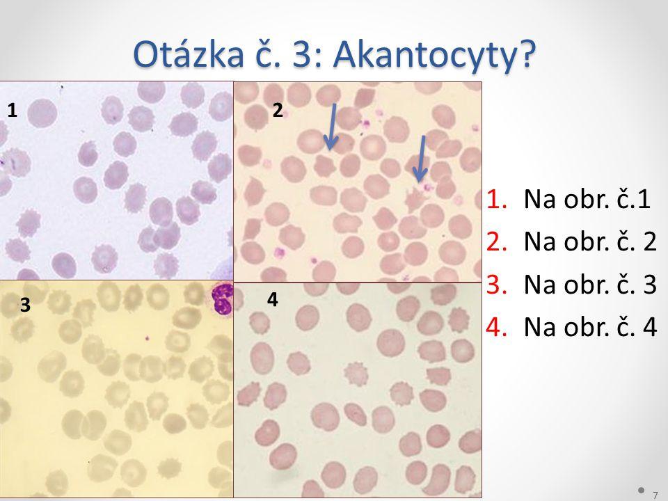 Otázka č. 3: Akantocyty Na obr. č.1 Na obr. č. 2 Na obr. č. 3