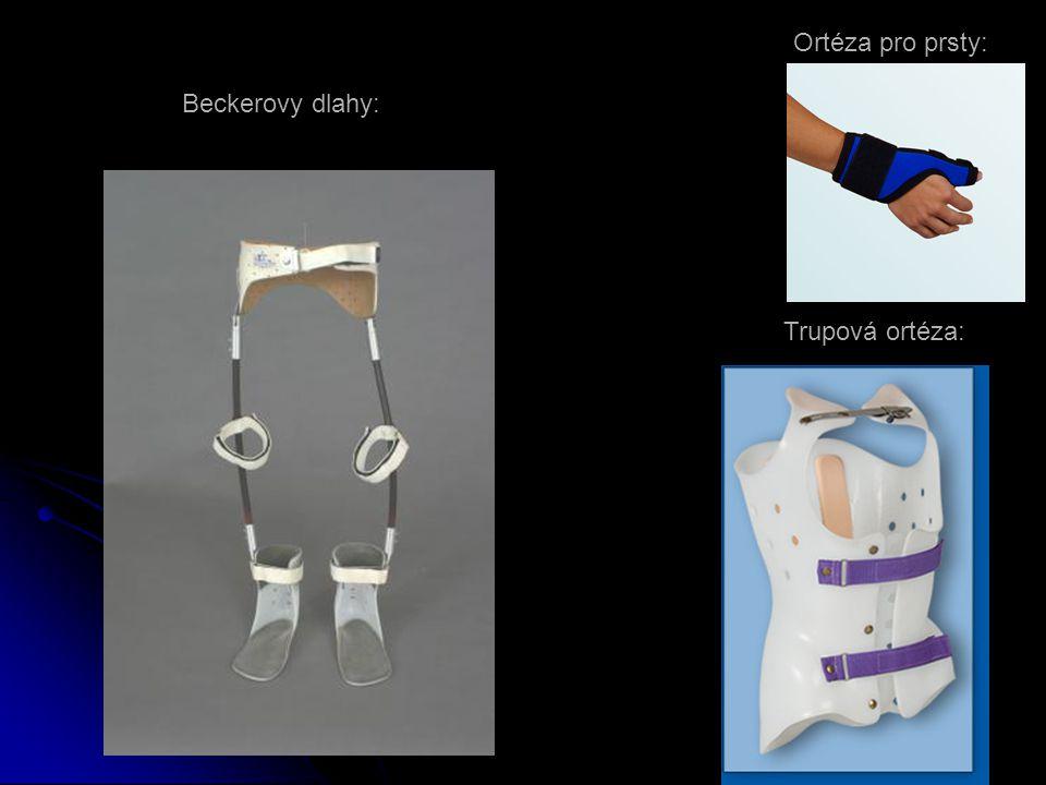 Ortéza pro prsty: Beckerovy dlahy: Trupová ortéza: