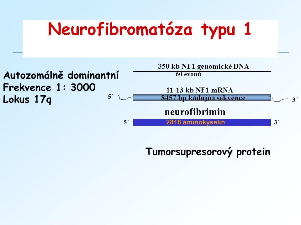 Neurofibromatóza typu 1