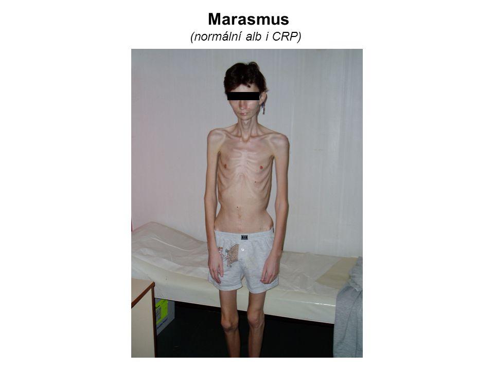 Marasmus (normální alb i CRP)