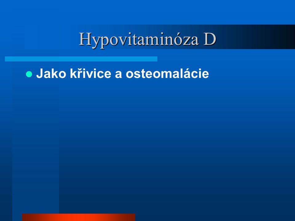 Hypovitaminóza D Jako křivice a osteomalácie