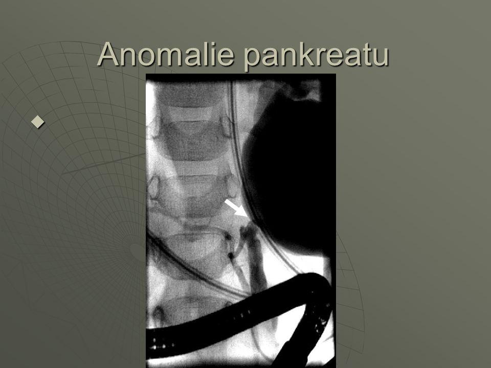 Anomalie pankreatu