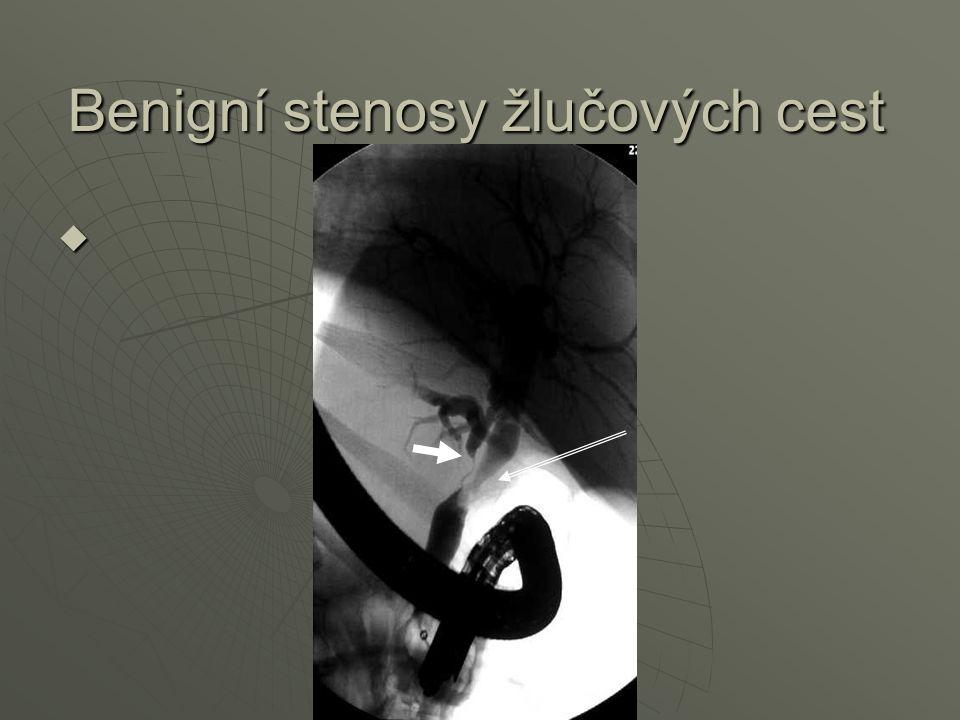Benigní stenosy žlučových cest
