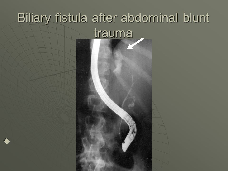 Biliary fistula after abdominal blunt trauma