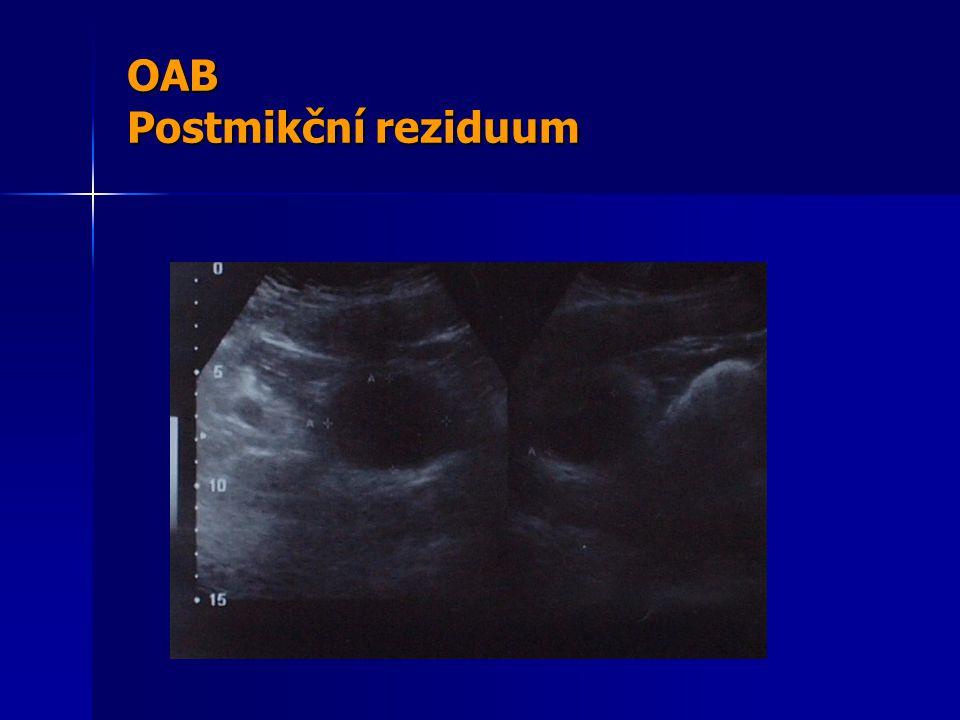 OAB Postmikční reziduum