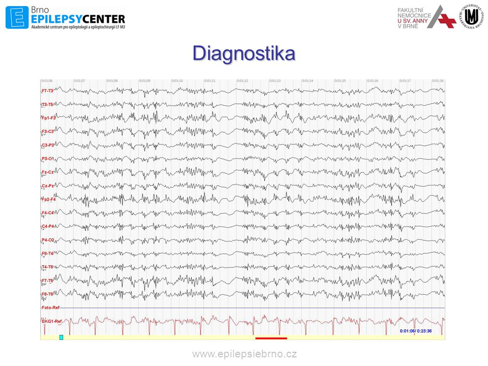 Diagnostika www.epilepsiebrno.cz