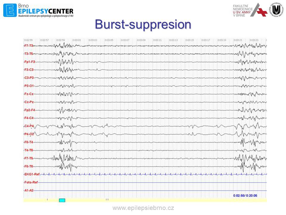Burst-suppresion www.epilepsiebrno.cz www.epilepsiebrno.cz