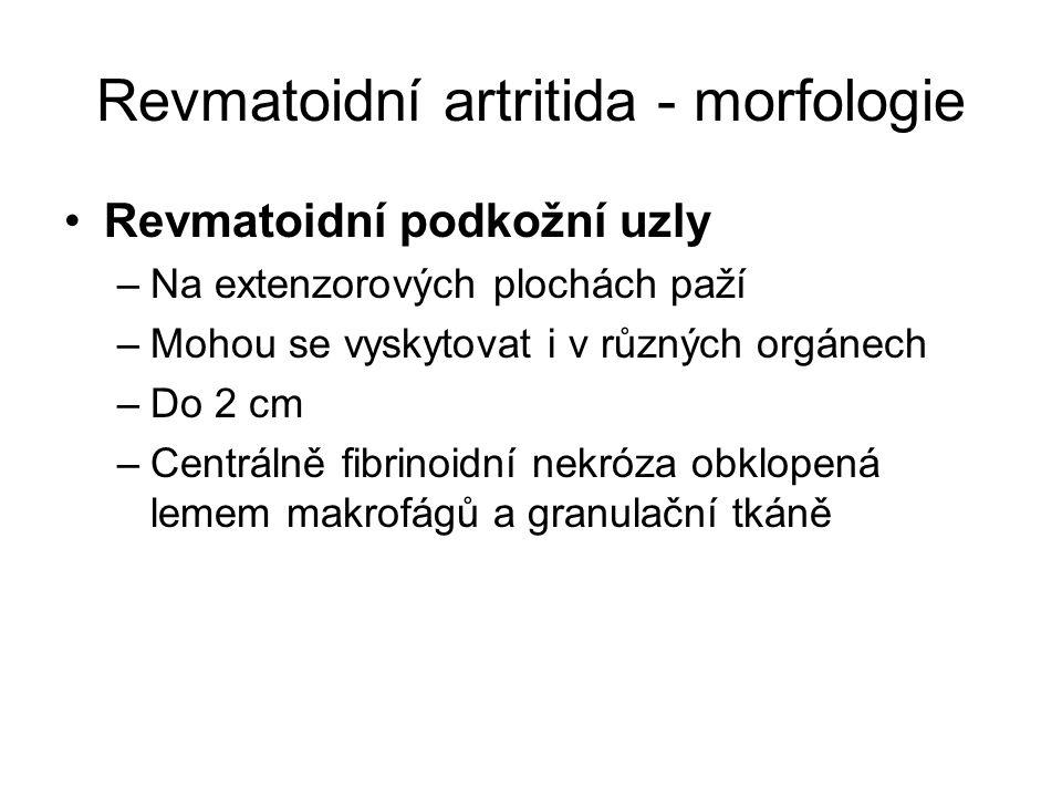 Revmatoidní artritida - morfologie