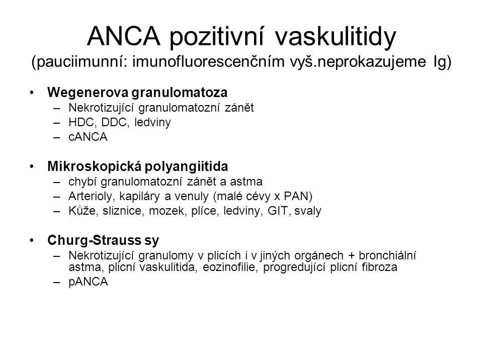 ANCA pozitivní vaskulitidy (pauciimunní: imunofluorescenčním vyš