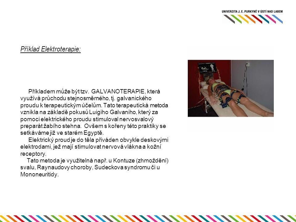 Příklad Elektroterapie: Příkladem může být tzv