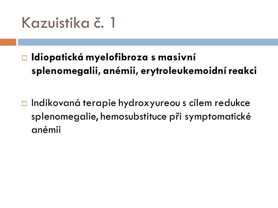 Kazuistika č. 1 Idiopatická myelofibroza s masivní splenomegalii, anémii, erytroleukemoidní reakci.