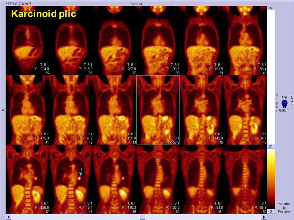 Karcinoid plic