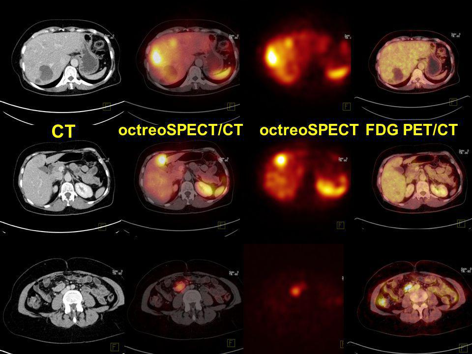 CT octreoSPECT/CT octreoSPECT FDG PET/CT