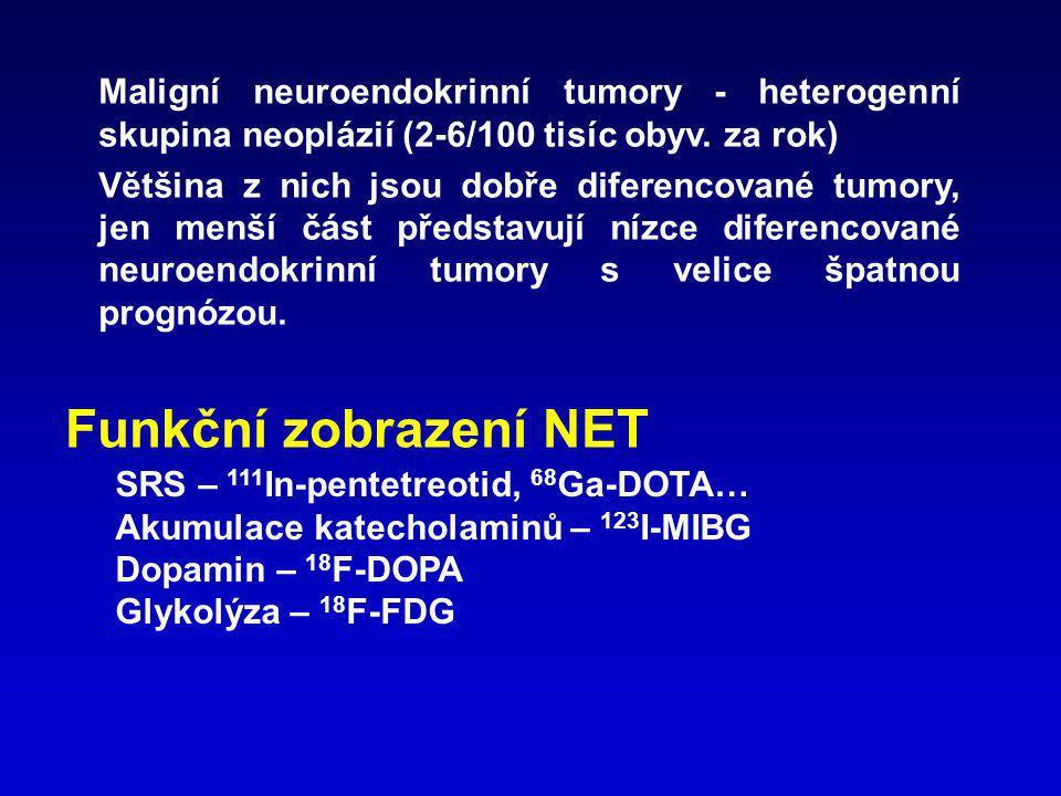 Maligní neuroendokrinní tumory - heterogenní skupina neoplázií (2-6/100 tisíc obyv. za rok)