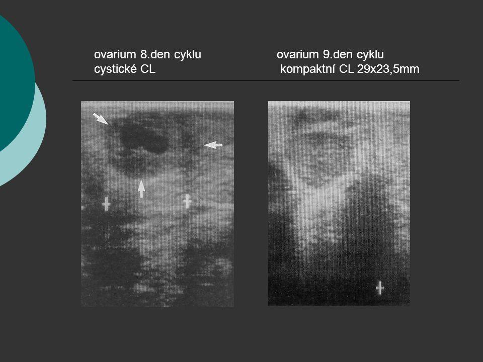ovarium 8.den cyklu cystické CL