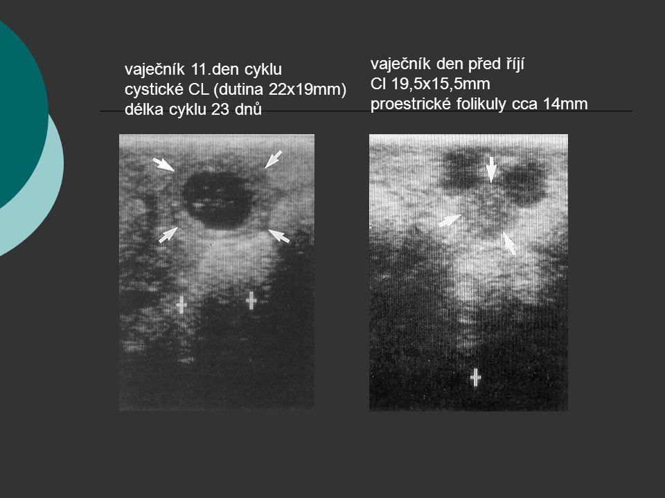 vaječník den před říjí Cl 19,5x15,5mm
