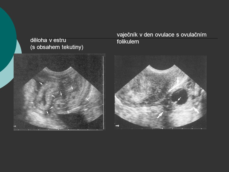 vaječník v den ovulace s ovulačním