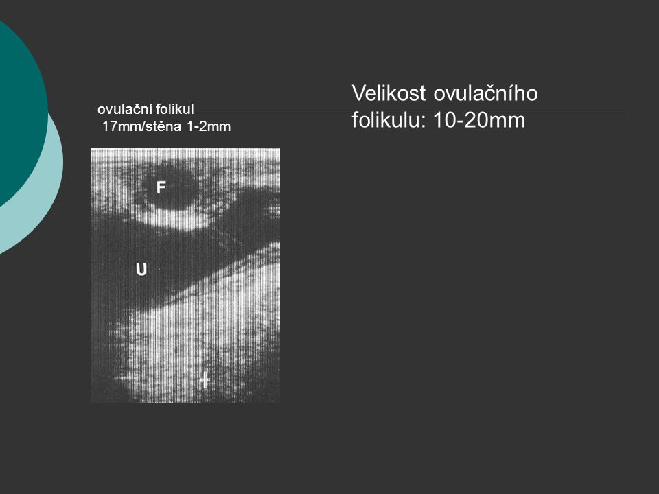 ovulační folikul 17mm/stěna 1-2mm