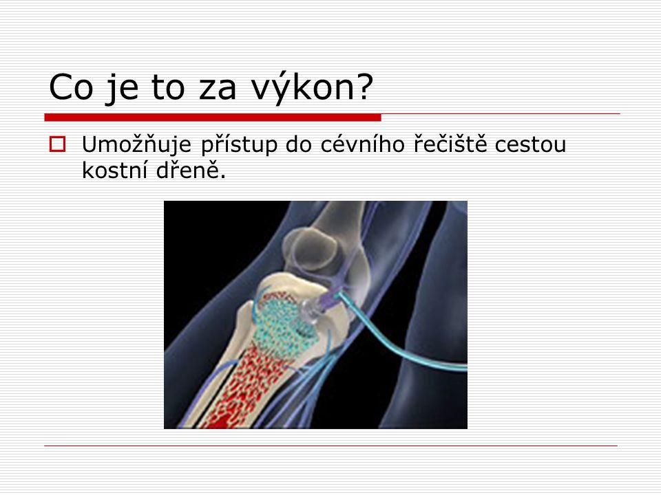 Co je to za výkon Umožňuje přístup do cévního řečiště cestou kostní dřeně.