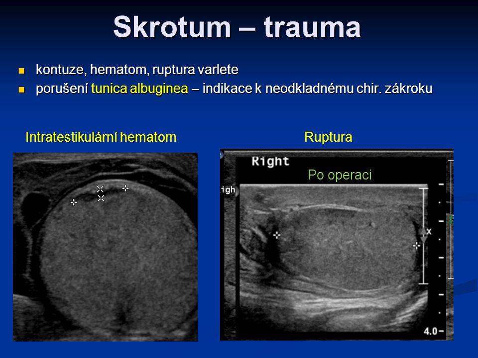 Skrotum – trauma kontuze, hematom, ruptura varlete