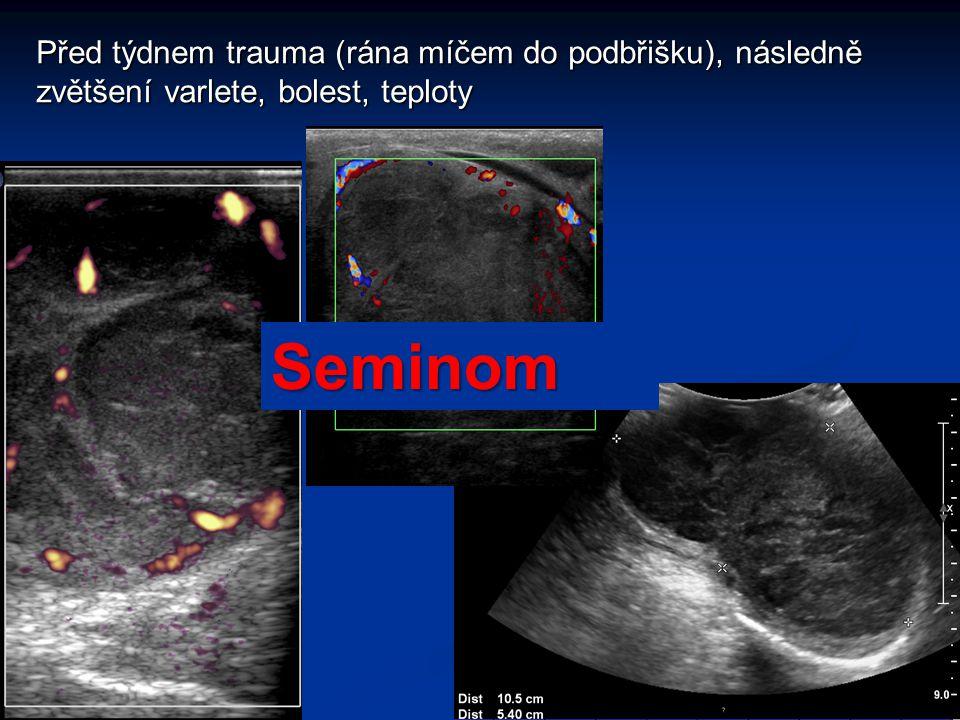 Před týdnem trauma (rána míčem do podbřišku), následně zvětšení varlete, bolest, teploty