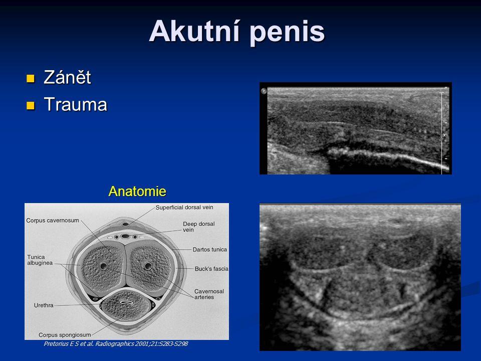 Akutní penis Zánět Trauma Anatomie