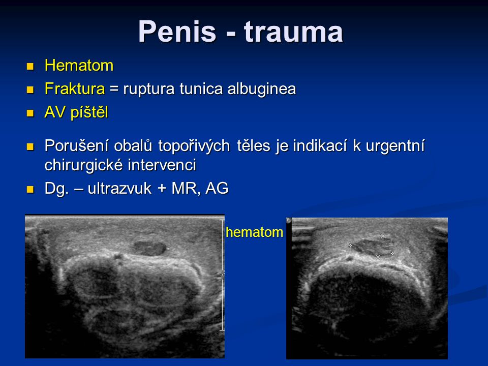 Penis - trauma Hematom Fraktura = ruptura tunica albuginea AV píštěl