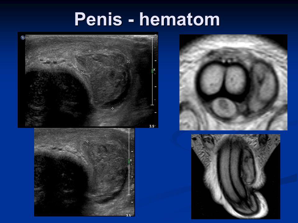Penis - hematom