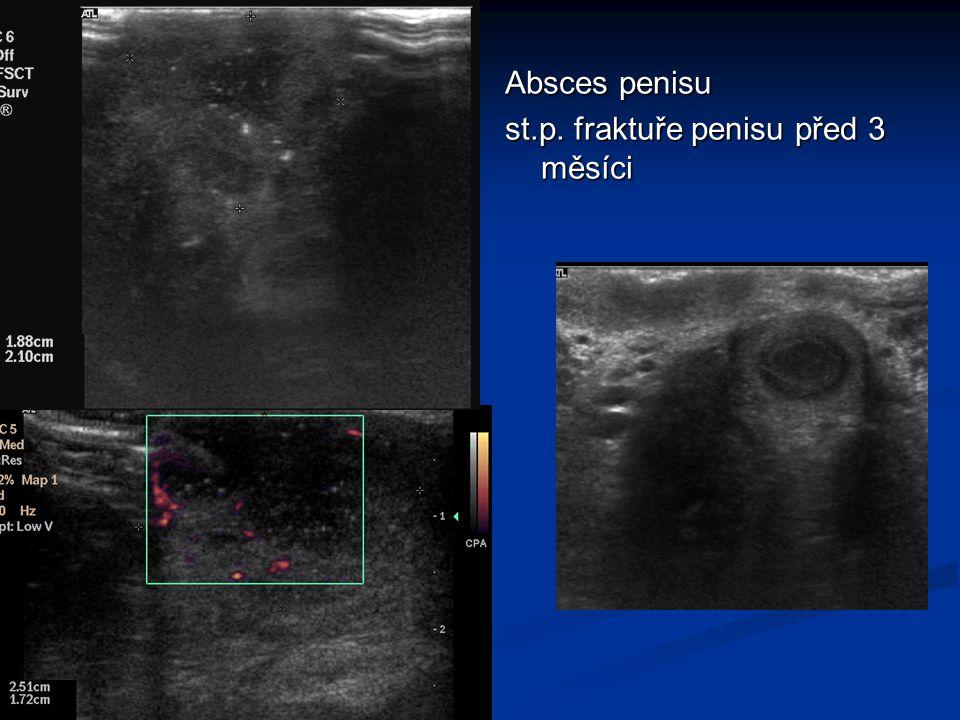 Absces penisu st.p. fraktuře penisu před 3 měsíci