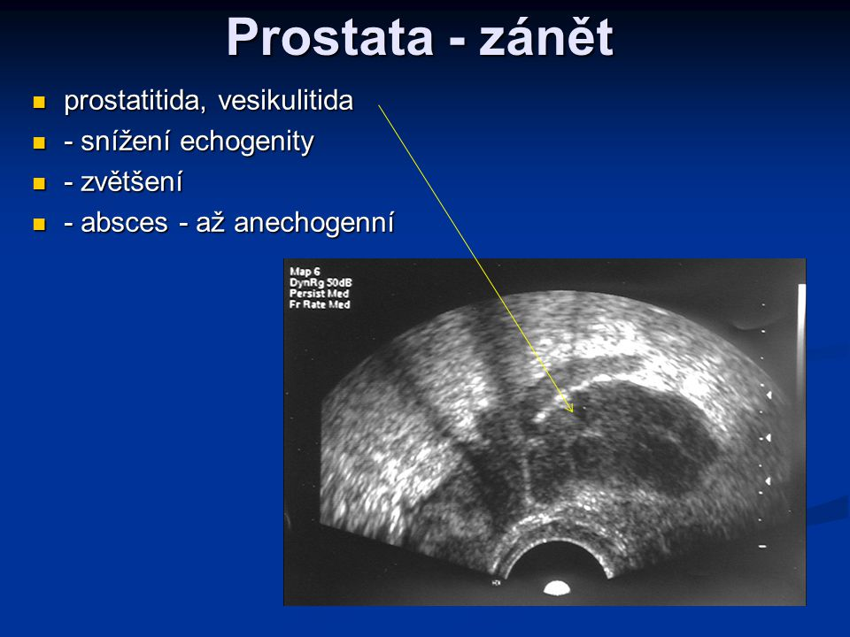 Prostata - zánět prostatitida, vesikulitida - snížení echogenity