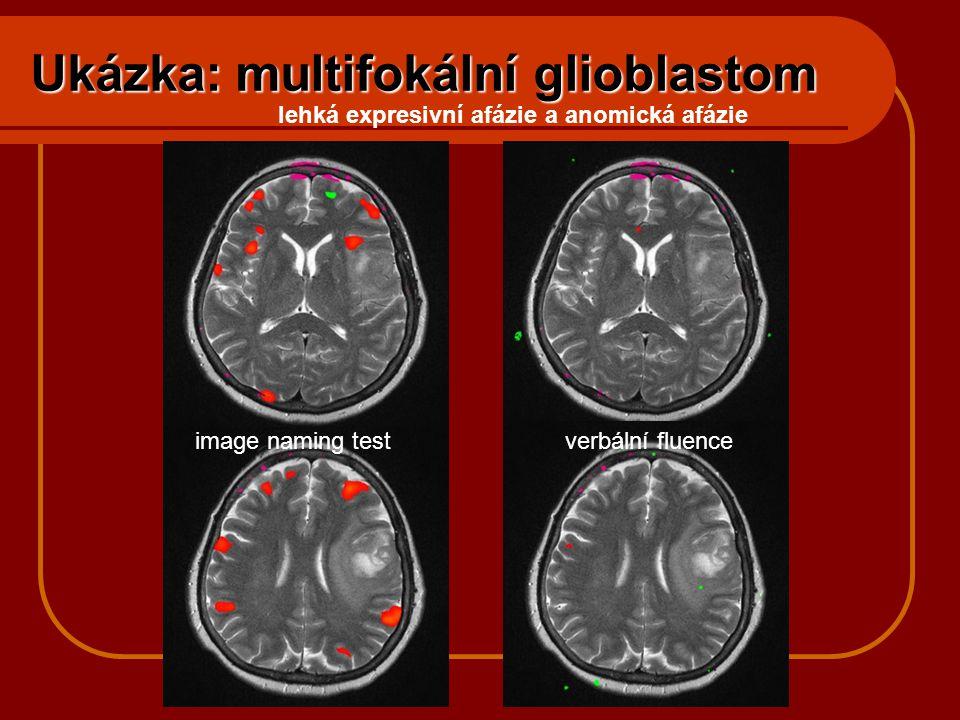 Ukázka: multifokální glioblastom