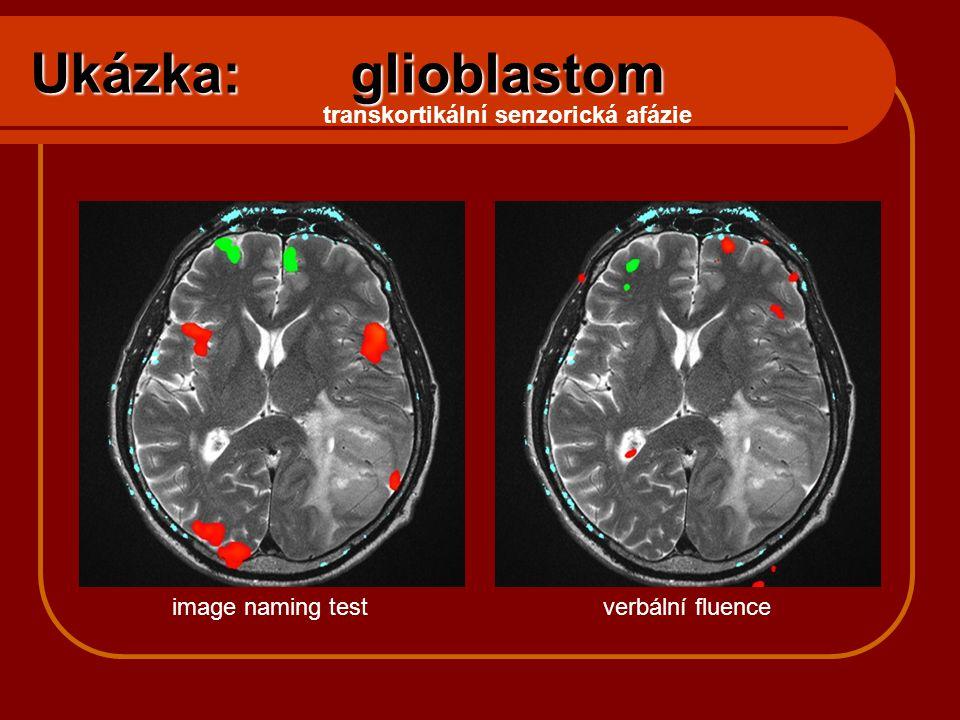 Ukázka: glioblastom transkortikální senzorická afázie