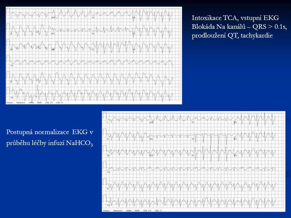 Intoxikace TCA, vstupní EKG