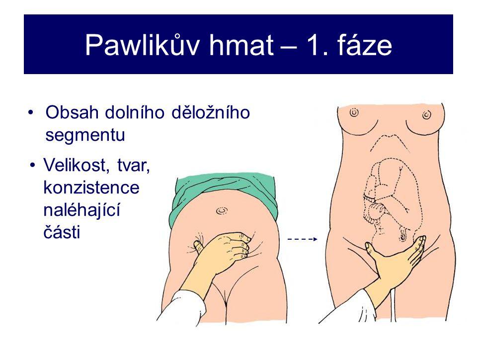 Pawlikův hmat – 1. fáze Obsah dolního děložního segmentu