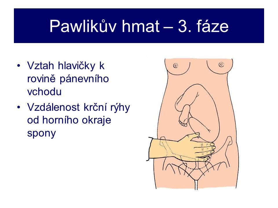 Pawlikův hmat – 3. fáze Vztah hlavičky k rovině pánevního vchodu