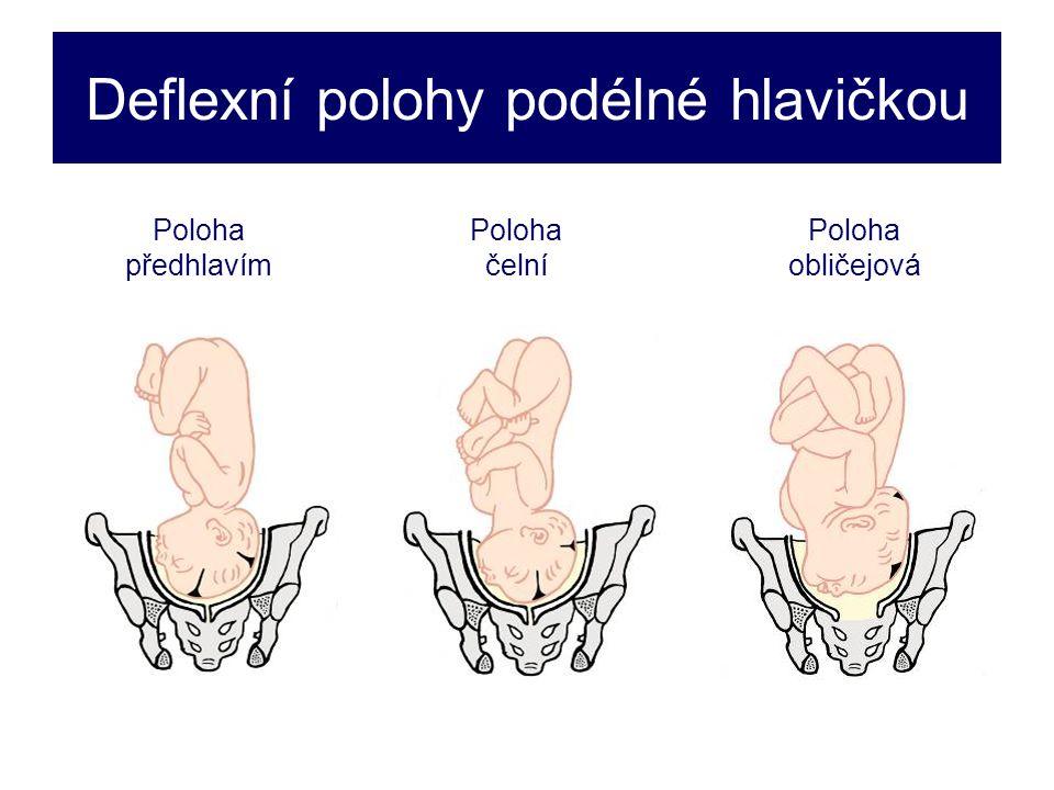 Deflexní polohy podélné hlavičkou