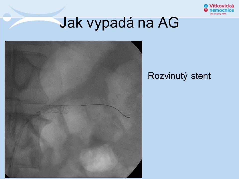 Jak vypadá na AG Rozvinutý stent